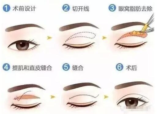 双眼皮手术很痛