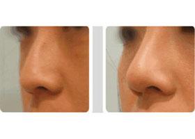 益阳康雅玻尿酸注射隆鼻 一下子变美真实案例分享