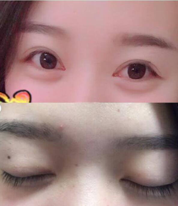 到杭州市第一人民医院找周景和医生做的双眼皮+开内眼角 效果很棒