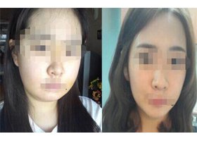 在成都维度做的隆下巴 脸型越来越瘦了,心情真的很不错