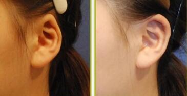 隐耳整形常见价格与高端价格相差多少?
