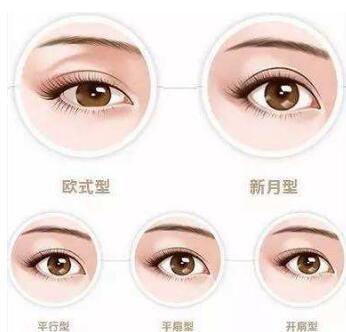 【整形医院医生干货】在杭州亲身体验的双眼皮技术好医生医院整合