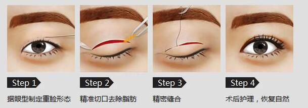 广州切双眼皮手术的效果怎么样呢?