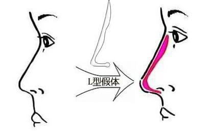 上海隆鼻做得好医生攻略大全