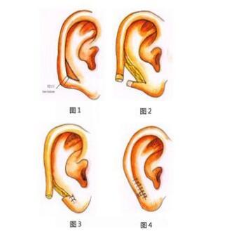 耳部再造真的能够做的很自然吗?