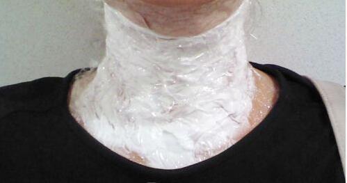 常德烧伤疤痕修复个人真实案例分享