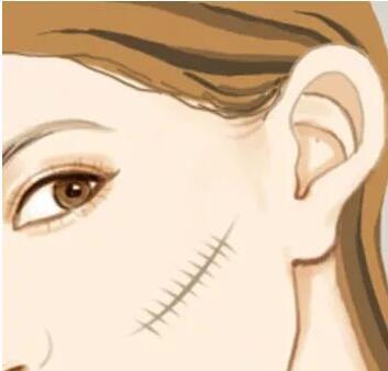 皮瓣修复面部疤痕容易留下痕迹吗?