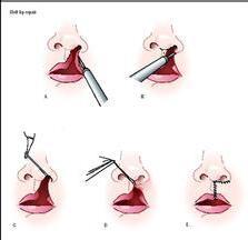 小孩有裂唇能不能完全的修复好?