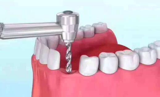 种植牙成功后应该要怎么注意维护