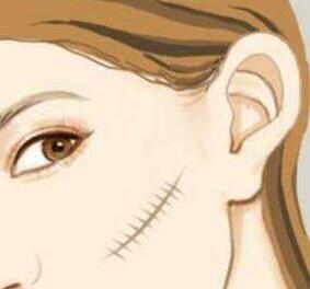 激光祛疤常见价格与高端价格分别是多少?