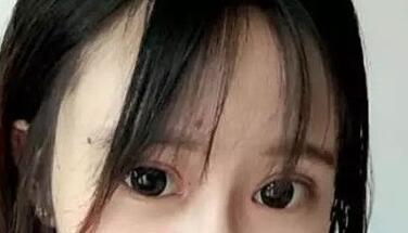 广州双眼皮案例