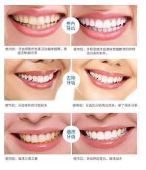牙齿美白方法攻略,你喜欢那种?