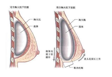 胸部假体取出手术疼吗?