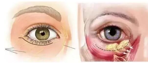 祛眼袋手术不是缺钱