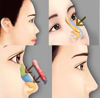 自体软骨隆鼻手术操作过程