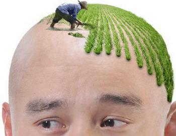 头发种植后的护理真的很重要