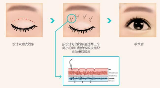 做双眼皮手术