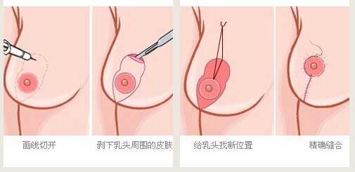 乳房下垂矫正要根据切口不同来区分效果