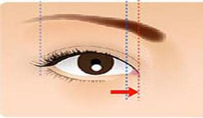 开眼角术后避开这些禁忌能够让效果更美