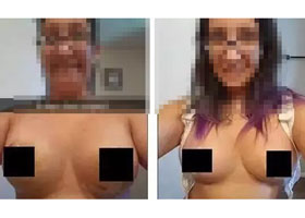 宜兴中西医结合韩式动感无痕丰胸术真实案例分享