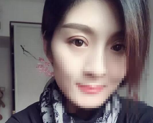 西安致美韩式双眼皮真实案例分享