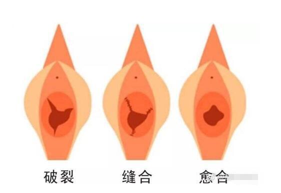处女膜修复手术简单吗