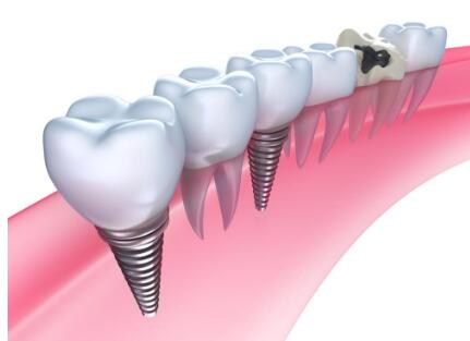 想要做种植牙的话,那需要具备什么条件吗?