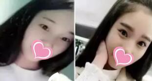 北京双眼皮整形技术好专家对比详解 3名知名三甲医院专家
