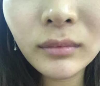 内江韩美玻尿酸丰唇案例分享