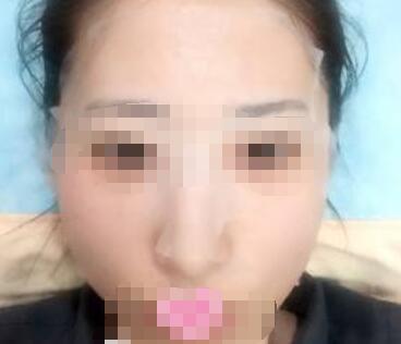 内江韩美面部提升术案例分享