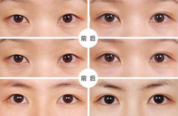 广州双眼皮手术效果图怎么样