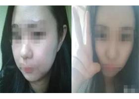 玉溪汝智星范注射瘦脸案例分享