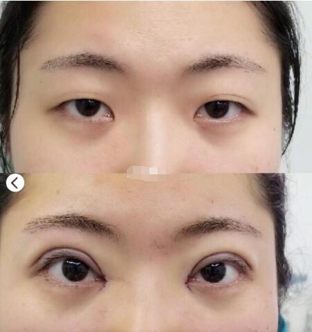 江苏省中医院王金明做的全切双眼皮案例分享