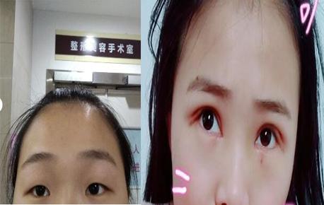 江苏省中医院刘育凤医生做的全切双眼皮+内眼角案例分享
