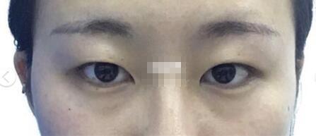 江苏省中医院王金明医生做全切双眼皮手术真实案例分享