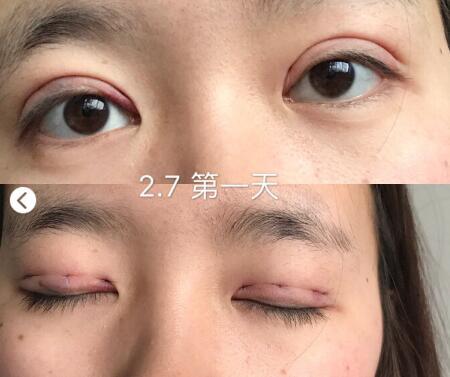 浙大医学院附属第一医院范希玲医生给我做的韩式三点双眼皮案例