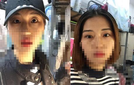 江苏省中医院刘宁医生做的全切双眼皮案例分享