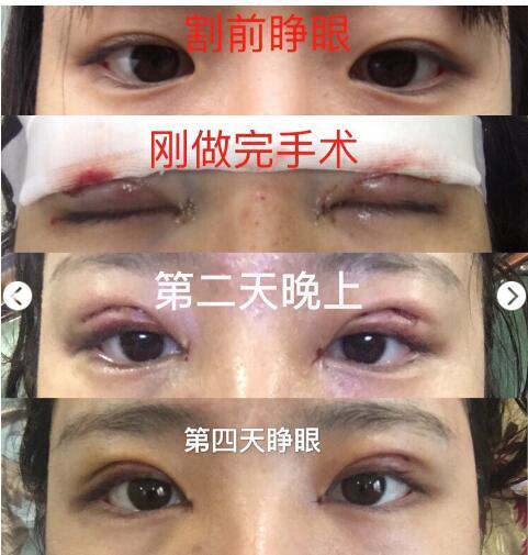 上海第九人民医院张余光做双眼皮+开眼角真实案例分享