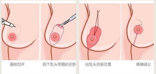 妹子们做乳房下垂矫正术