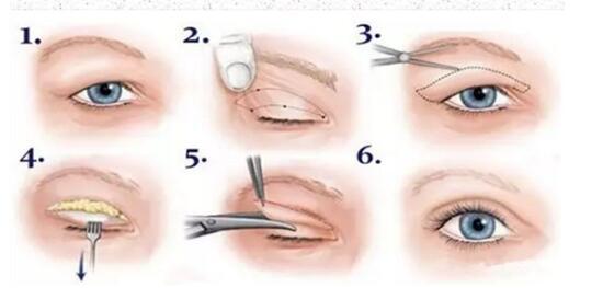 深圳双眼皮手术方式有这三种,看看自己是个哪种