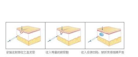 郑州玻尿酸除皱是没有什么副作用的吗?
