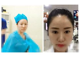 渭南海成医院韩海成医生做的水光针真实案例分享