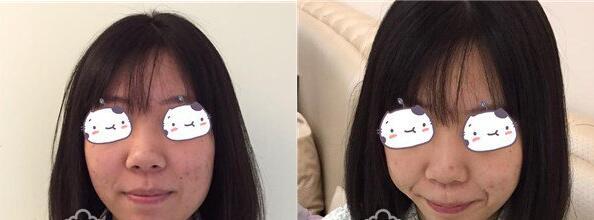 北京美莱宫风勇医生做膨体隆鼻+耳软骨垫鼻尖真实案例分享