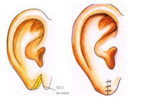 耳垂再造常见价格与高端价格的区别是多少