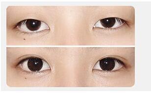 深圳双眼皮术后护理要点多不多?