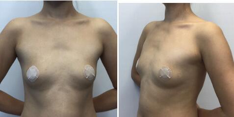 分享一下在北京英煌梁耀婵医生做了自体脂肪隆胸真实案例