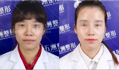 在武汉隆鼻可以了解的3位整形医生