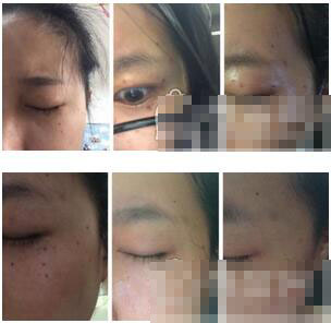 分享一下上海华山钱辉医生做了激光祛斑手术真实案例