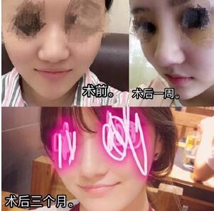 分享了一下我在北京柏丽李劲良医生做的鼻综合手术真实案例