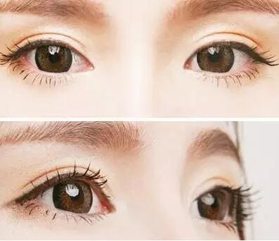 深圳月经期间可以做双眼皮吗
